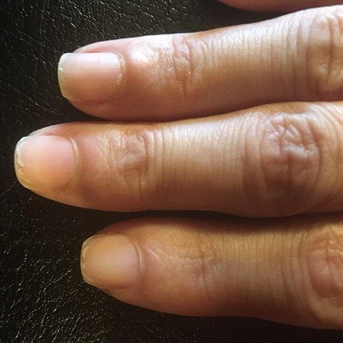 爪が割れやすい、二枚爪